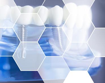 implantologie dentara medicina dentara clinica maxilomed oradea implant dentar oradea implantologie orala