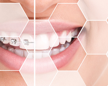 ortodontie medicina dentara clinica maxilomed oradea medic ortodont