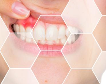 parodontologie medicina dentara clinica maxilomed oradea medic parodontolog