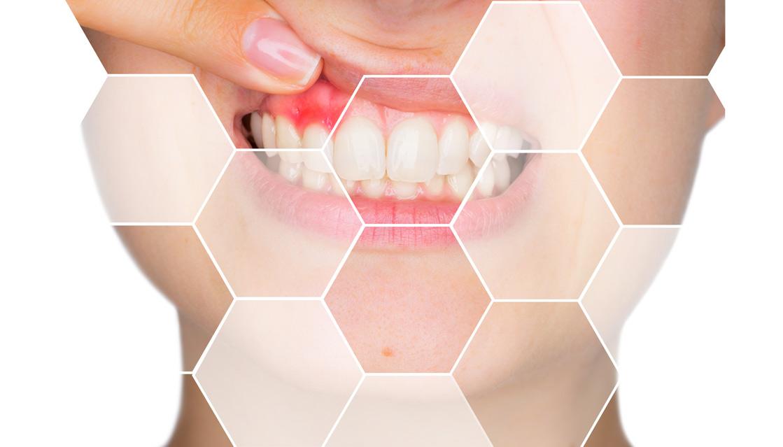 parodontologie medicina dentara clinica maxilomed oradea parodontoza